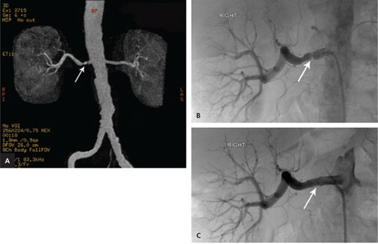 Non-invasive imaging cannot replace formal angiography in the diagnosis of renovascular hypertension